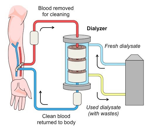 Kidney Dialysis Scott D Mcdowall